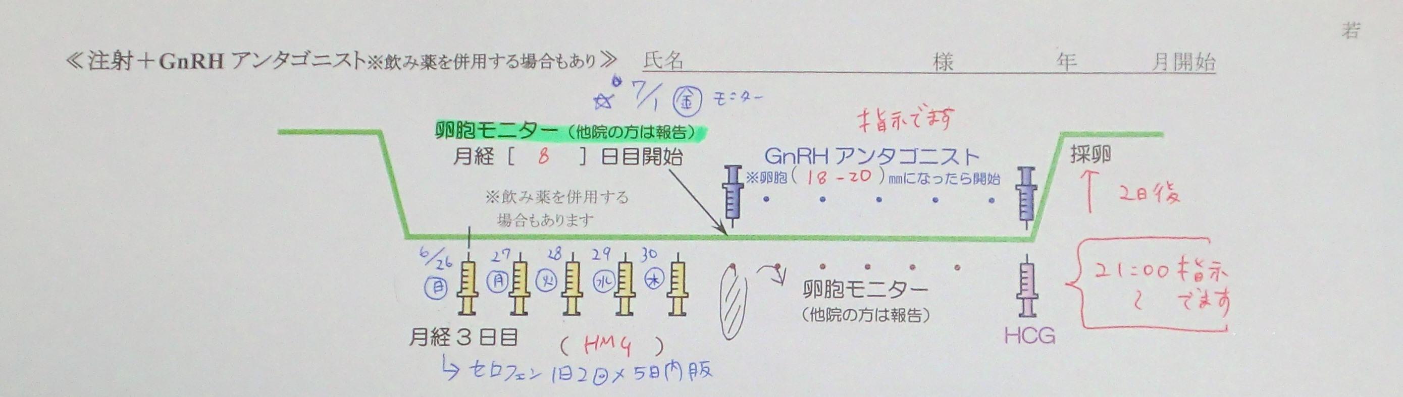 【体験談】アンタゴニスト法をしました。hMG注射で体外受精。